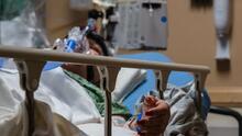 Uno de cada tres enfermos graves de covid-19 presentó luego una afección neurológica o mental, según estudio