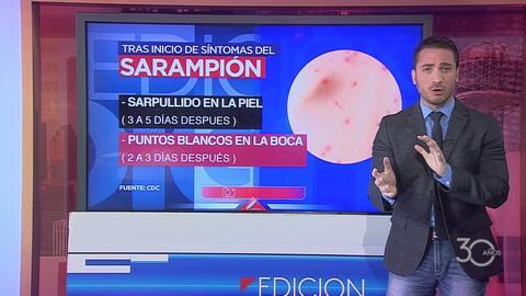 Confirman primer caso de sarampión en una preparatoria de Plano