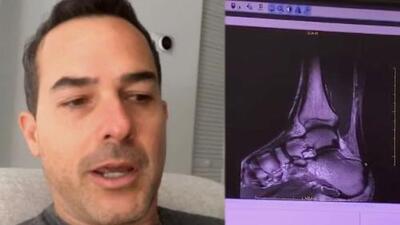 Muy asustado, Carlos Calderón contó que será operado tras romperse el tendón de Aquiles