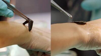 Terapia con sanguijuelas en cirugía plástica y reconstructiva, ¿te animarías a dejar que te chupen la sangre?
