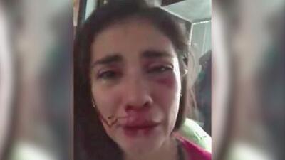 Ensangrentada y rogando ayuda: revelan videos de Eileen Moreno tras la golpiza de la que acusa a su ex