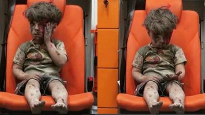 Así está hoy el niño cuyo sufrimiento fue símbolo de la guerra de Siria