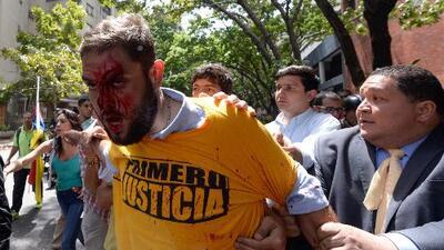 Siete asambleístas opositores apaleados en Venezuela por fuerzas afines a Maduro