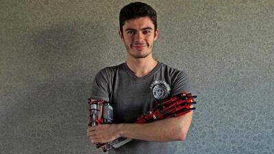 Este joven se construyó un brazo protésico con piezas de Lego