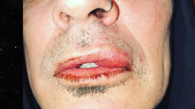 El hijo mayor de Pamela Anderson le rompe la boca de un puño a su papá, el rockero Tommy Lee